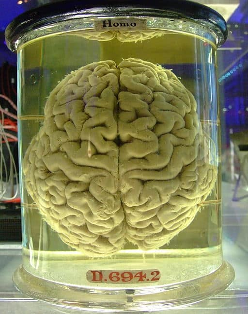 Human brain in a clear liquid